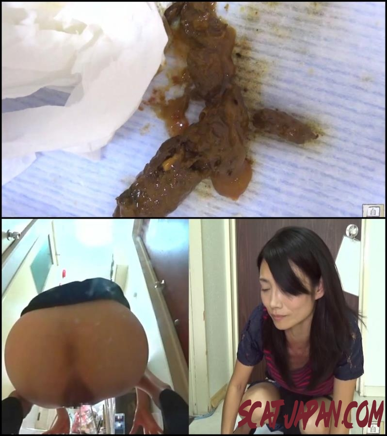 BFJG-10 Enema patience and squirting incontinence fecal (273.1336_BFJG-10) [2018 | 895 MB]
